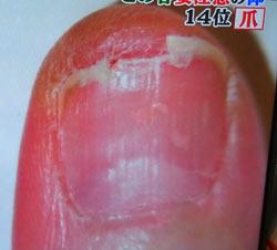 爪の健康を保つためにはまず保湿です