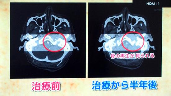 上咽頭膿瘍・治療後半年で溶けていた骨が再生しつつある