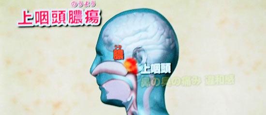 上咽頭膿瘍