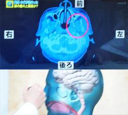 VTRで頭部CTで咽の少し上に腫れがあると言っていた