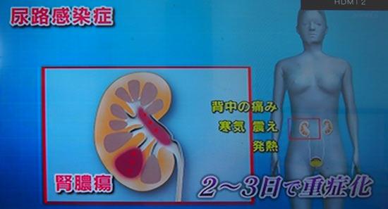 さらに腎臓の奥に膿が溜まると腎膿瘍