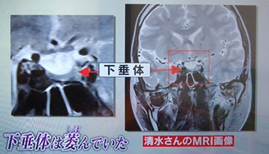 MRIで確認 下垂体しぼんでいた