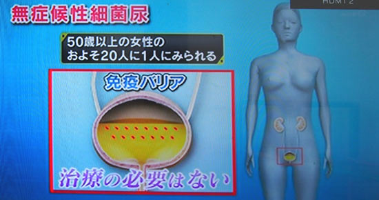 無症候性細菌尿