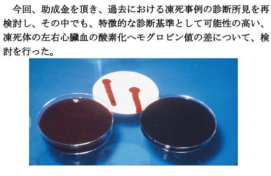 死体を解剖した時に左より右の心臓の血が赤いと凍死らしい